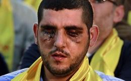 Đến lượt Hezbollah rã đám, muốn bỏ mặc Assad và chuồn khỏi Syria?