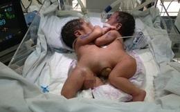 Bộ trưởng Tiến ủng hộ 5 triệu đồng cho 2 bé song sinh dính liền
