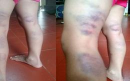 Cô giáo trẻ đánh 1 học sinh lớp 2 thâm tím chân gây xôn xao