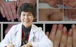 Nguyên Chủ tịch Hội Chống độc VN chỉ ra hậu quả khủng khiếp khi trẻ em nhiễm chì