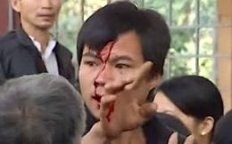 Người bị đánh chảy máu đầu ở buổi họp về cây sưa 50 tỷ: Chiếc ghế vỡ tan, tôi choáng váng