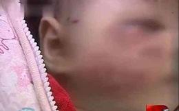 Mẹ ra ngoài, bé gái 2 tháng tuổi ở nhà bị chó cắn nát mặt