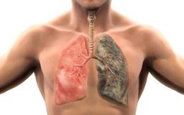 """Đừng hỏi vì sao không hút thuốc và suốt ngày ở trong nhà mà phổi vẫn """"hỏng"""" như thường"""