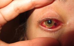Cảnh báo biến chứng của tật khúc xạ có thể gây nguy hiểm cho mắt