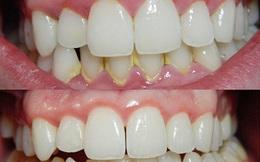 Dành 3 phút buổi tối làm việc này thì cả đời không cần đi nha sĩ lấy cao răng