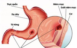 7 bí quyết bảo vệ dạ dày hiệu quả nhất ai cũng nên biết