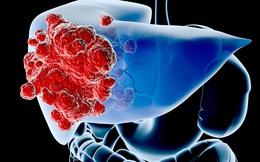 Dấu hiệu cảnh báo sớm bệnh ung thư gan mà bạn nên biết để tự cứu mình