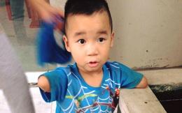 Cậu bé tí hon với đôi tay cụt và bàn chân 3 ngón lẫm chẫm đi khiến các mẹ rơi nước mắt
