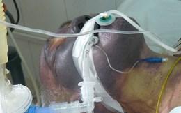 Cận cảnh gương mặt bị phá hủy do liên cầu lợn