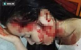 """Vụ thiếu nữ tố cô giáo hành hung: Nguyên nhân do bị đăng """"ảnh nóng"""""""