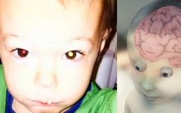 Những trường hợp phát hiện sớm ung thư kỳ lạ nhất thế giới, không cần tới bác sĩ