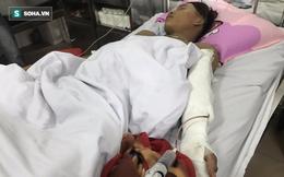 6 thanh niên bất ngờ lao tới chém người bán mía gần đứt lìa cánh tay