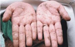 Có những dấu hiệu sau là bạn đã bị nhiễm độc chì