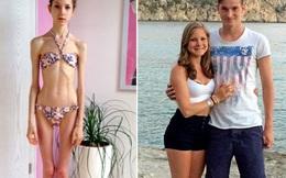 Cô gái 19 tuổi và ngoại hình khiến bất cứ ai thấy cũng phải hoảng sợ
