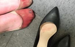 Nữ phục vụ bàn chia sẻ đôi chân rướm máu sau một ngày làm việc trên giày cao gót