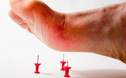 Bệnh uốn ván khiến hằng trăm nghìn người chết vì vết thương nhỏ