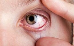 'Bắt bệnh' những dấu hiệu bất thường trên khuôn mặt