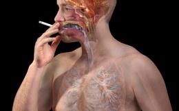 Mới 30 tuổi đã bị nhồi máu cơ tim: Hồi chuông báo động người hút thuốc lá