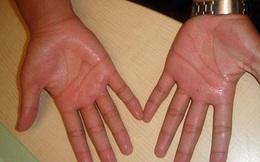 Mẹo dân gian trị bệnh ra mồ hôi chân tay cực hiệu quả