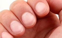 Chỉ cần nhìn tay, bạn sẽ dự đoán được mình có mắc 6 bệnh nguy hiểm này không