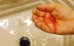 Chảy máu ở những chỗ này, cần kiểm tra gấp coi chừng bị ung thư!
