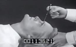 7 phương pháp chữa bệnh rùng rợn vẫn còn được áp dụng đến ngày hôm nay
