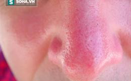 """Có dấu hiệu này trên mũi là bạn có tần suất """"chăn gối"""" quá cao, cần tiết chế"""