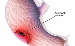 Béo phì: Nguyên nhân gây ra 8 loại ung thư