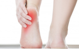 Sự thật sau những cơn đau ở gót chân