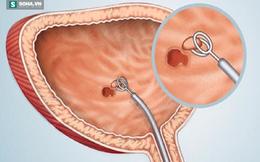 Triệu chứng rất thường gặp nhưng là dấu hiệu sớm 1 loại ung thư: Biết sớm để kịp cứu!