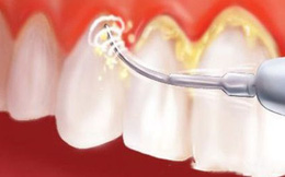 Cao răng phá huỷ sức khỏe răng miệng thế nào?