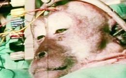 Cuộc hành trình của 3 ca ghép đầu khỉ khó tin trong lịch sử y học