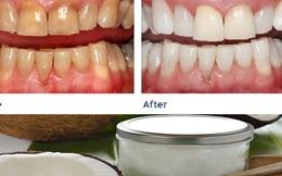 Thải độc cơ thể, ngăn ngừa bệnh răng miệng nhờ nhai dầu