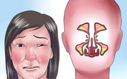 Mẹo nhỏ chữa nghẹt mũi hết nhanh mà không cần dùng thuốc