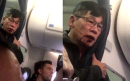 Bác sĩ gốc Việt David Dao sẽ nhận được bao nhiêu tiền bồi thường từ hãng United Airlines?