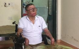 """Chiến sĩ sống sót vụ rơi máy bay ở Hòa Lạc: """"Có người nhận tài trợ lắp tay giả cho tôi"""""""
