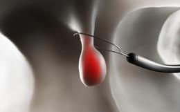 3 dấu hiệu của polyp đại trực tràng: Nguy cơ phát sinh ung thư nếu không điều trị sớm