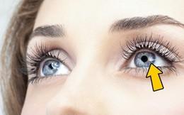 Có thể bị mù vĩnh viễn nếu mắt có dấu hiệu này mà mặc kệ không đi khám