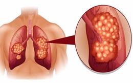 Thấy 1 trong 8 triệu chứng báo trước ung thư phổi, hãy đi khám ngay trước khi quá muộn!