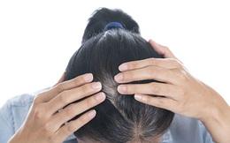 Xem vị trí tóc bạc đoán bệnh của gan, thận, dạ dày, lá lách