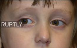 Đường về Nga đầy nước mắt của những đứa bé có cha mẹ làm lính IS tại Mosul