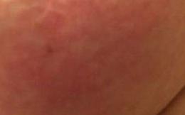Từ đốm nhỏ màu hồng trên da đến ung thư giai đoạn cuối: Đừng chủ quan dù là 1 dấu hiệu nhỏ