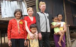 Kỳ lạ chị em người Ca Dong ở Quảng Nam bị xua đuổi, nhà chồng chì chiết vì giống hệt Tây
