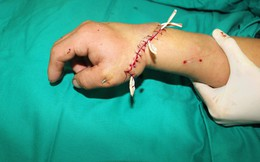 Đang cắt giấy, người đàn ông bị máy cắt đứt lìa bàn tay phải