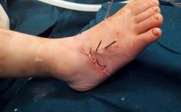 Bé 2 tuổi gần đứt lìa bàn chân do nghịch máy làm miến tại nhà