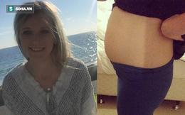 Bị ung thư bụng phình to tưởng loét dạ dày: Cô gái Úc cảnh báo 4 triệu chứng đặc biệt