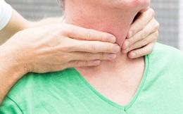 Tiến sĩ Mỹ tiết lộ 4 cách để tuyến giáp khỏe mạnh: Đơn giản nhưng ít người  biết
