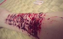 Không thực hiện được ước mơ du học, cô gái tự dùng dao rạch 16 nhát trên tay