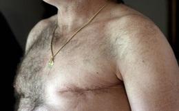 Bác sĩ cảnh báo bệnh ung thư tưởng chừng ở phụ nữ nhưng lại cực kỳ nguy hiểm với nam giới