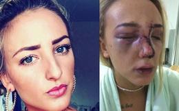 Bị bạn cũ cầm giày đánh vào mặt, cô gái ngay lập tức mất trắng 6.500 USD
